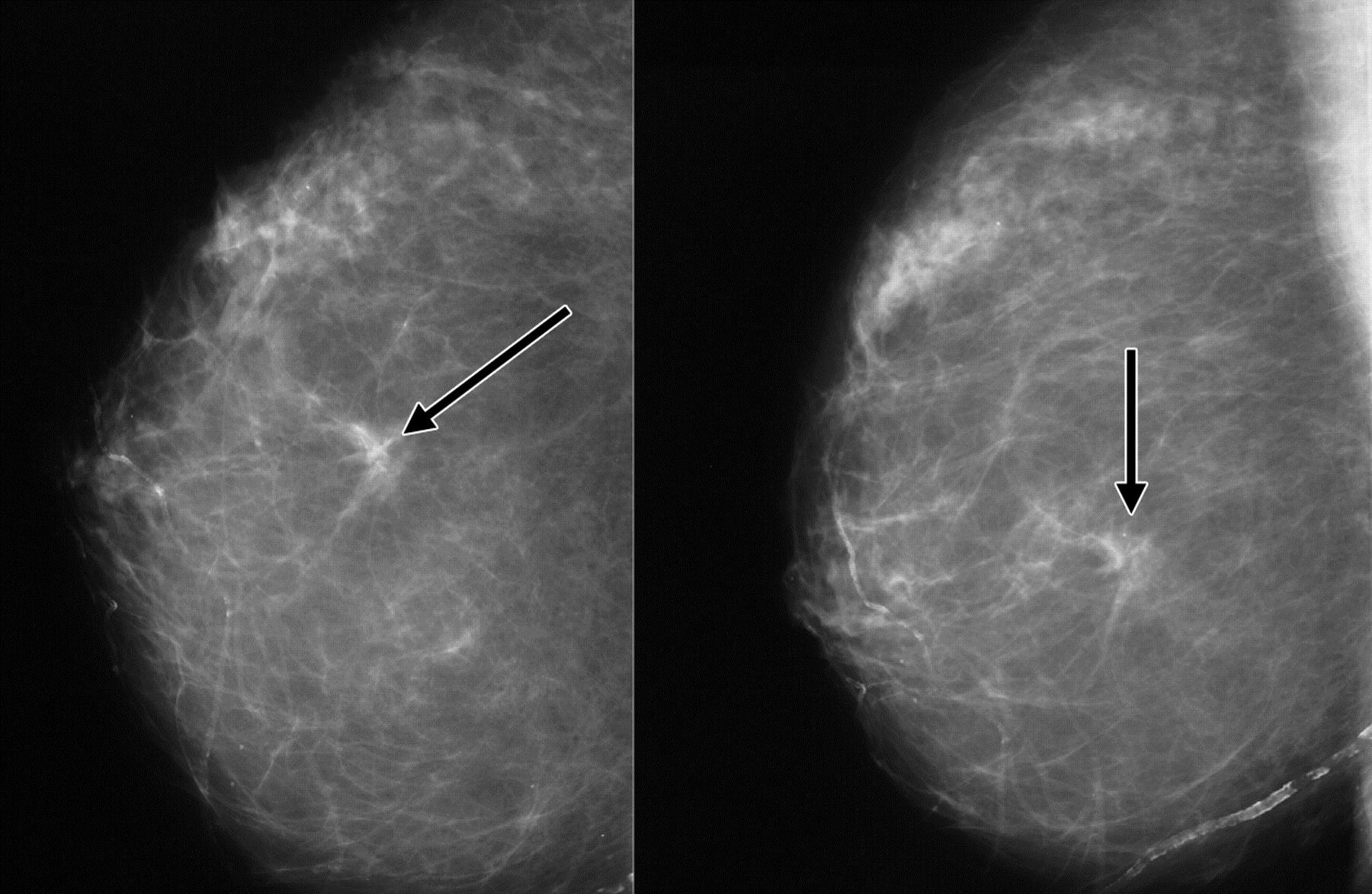 3 Facts About Breast Cancer Screening Every Woman Needs To Know